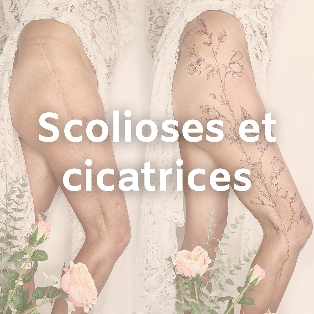 tatouage cicatrice